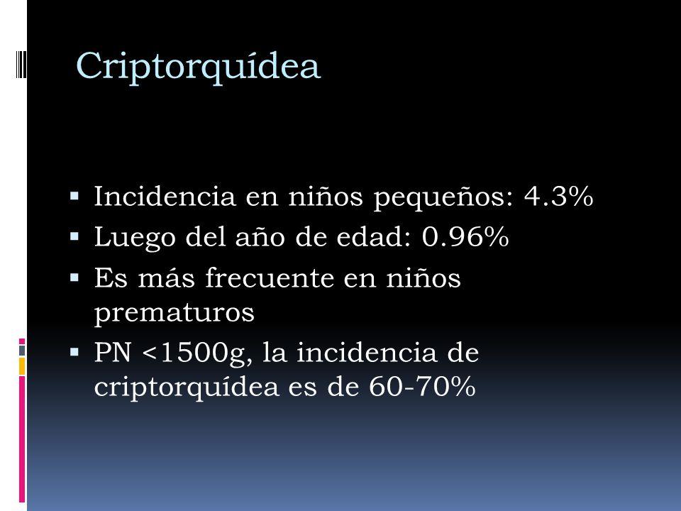 Criptorquídea Incidencia en niños pequeños: 4.3%
