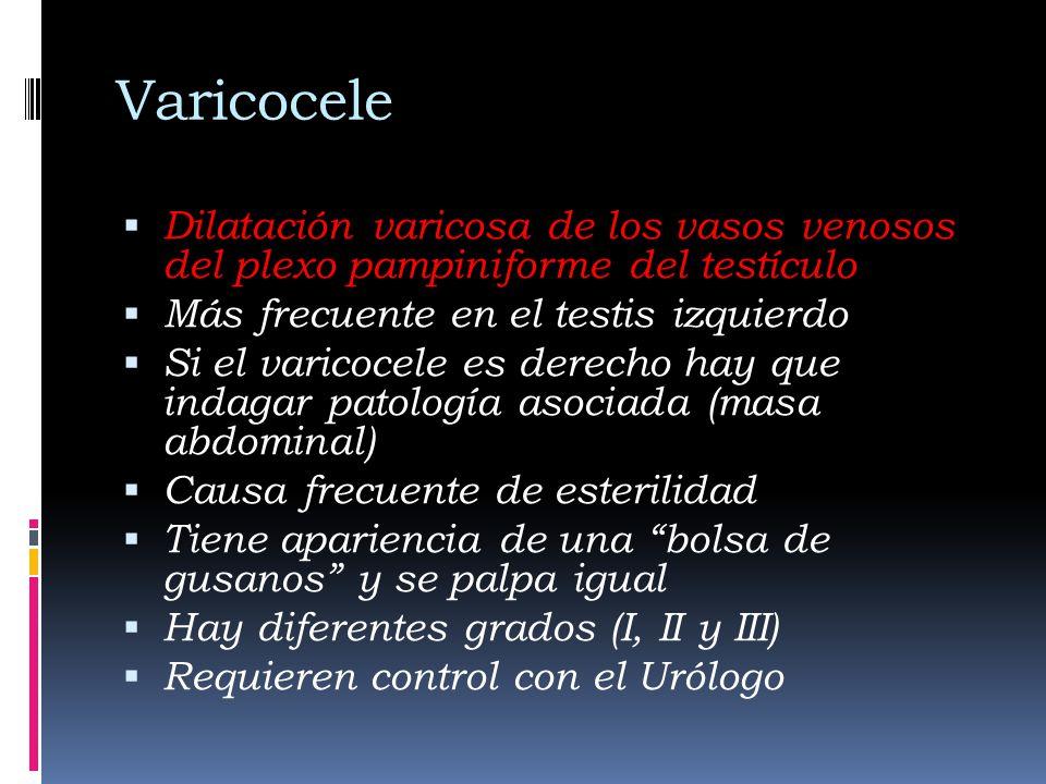 Varicocele Dilatación varicosa de los vasos venosos del plexo pampiniforme del testículo. Más frecuente en el testis izquierdo.