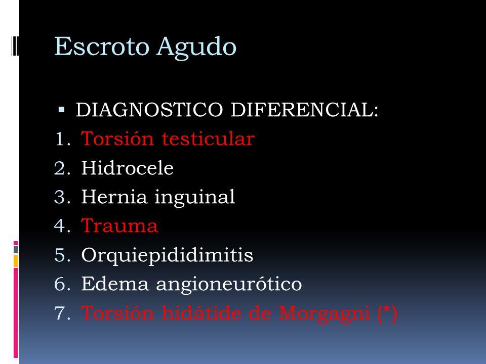 Escroto Agudo DIAGNOSTICO DIFERENCIAL: Torsión testicular Hidrocele