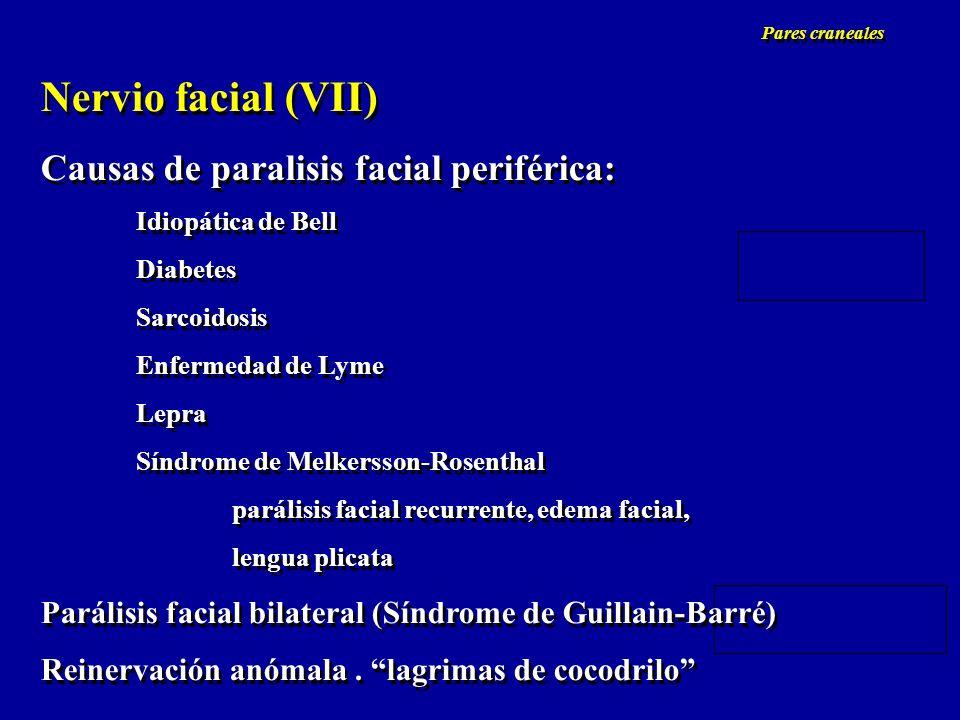 Nervio facial (VII) Causas de paralisis facial periférica: