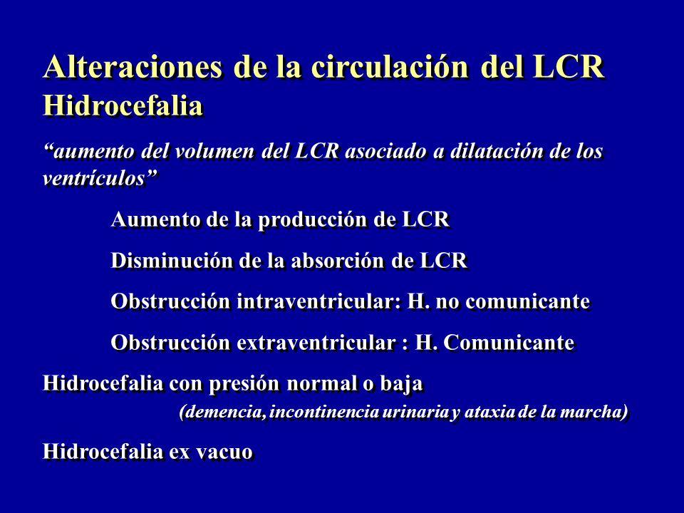 Alteraciones de la circulación del LCR Hidrocefalia
