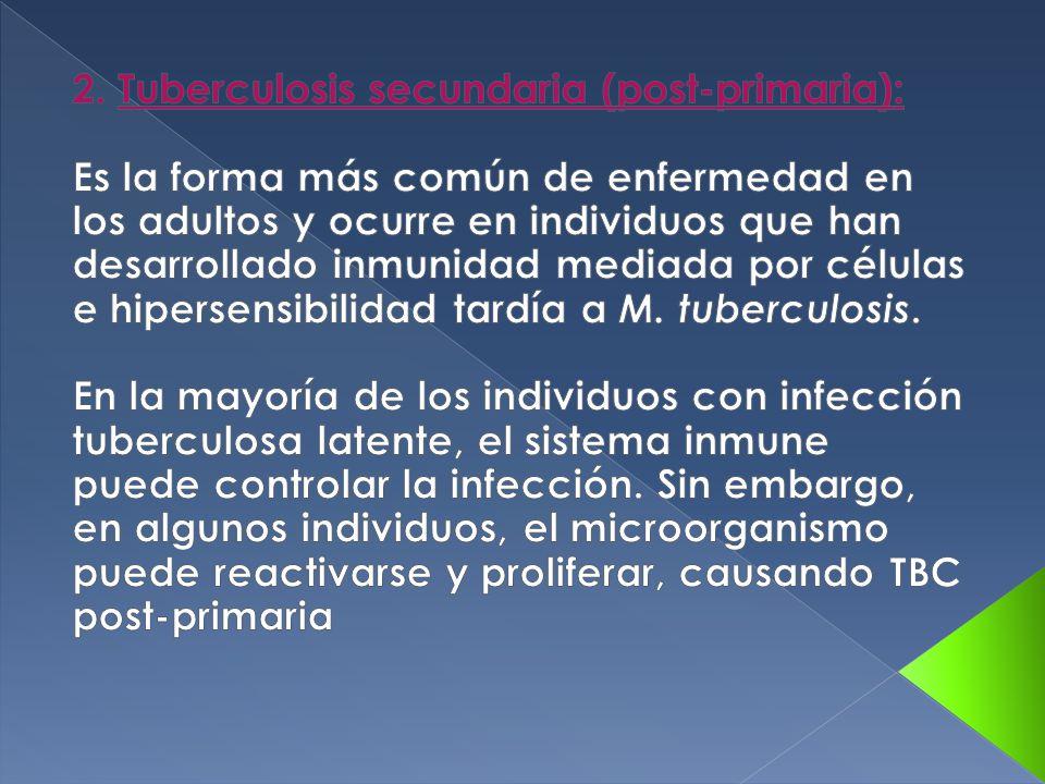 2. Tuberculosis secundaria (post-primaria):