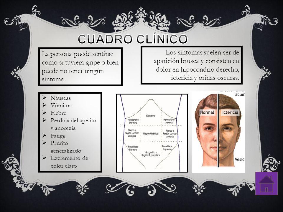CUADRO CLÍNICO Los síntomas suelen ser de aparición brusca y consisten en dolor en hipocondrio derecho, ictericia y orinas oscuras.