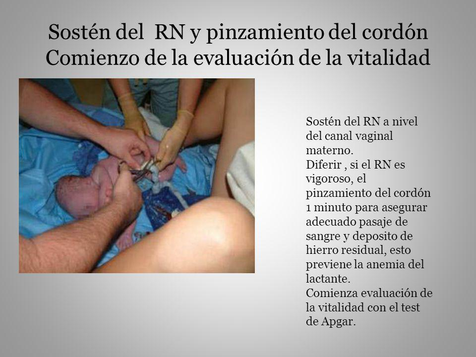 Sostén del RN y pinzamiento del cordón Comienzo de la evaluación de la vitalidad