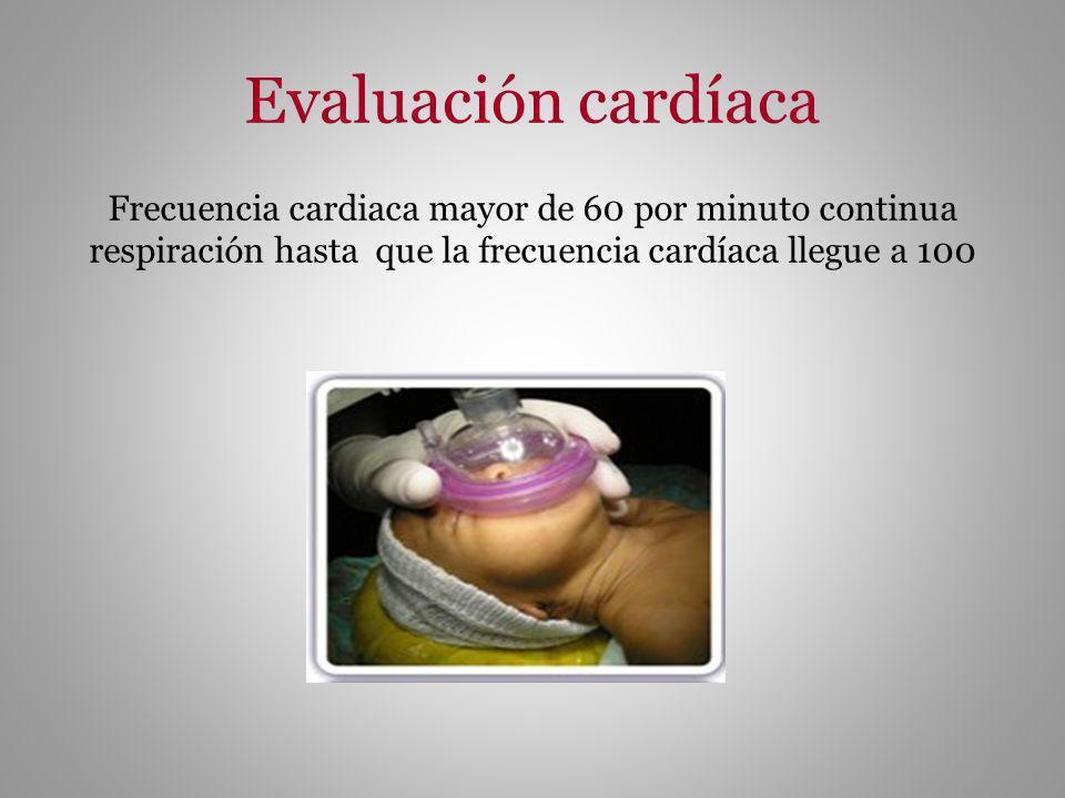 Evaluación cardíaca Frecuencia cardiaca mayor de 60 por minuto continua respiración hasta que la frecuencia cardíaca llegue a 100.