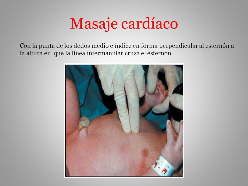 Masaje cardíaco Con la punta de los dedos medio e índice en forma perpendicular al esternón a.