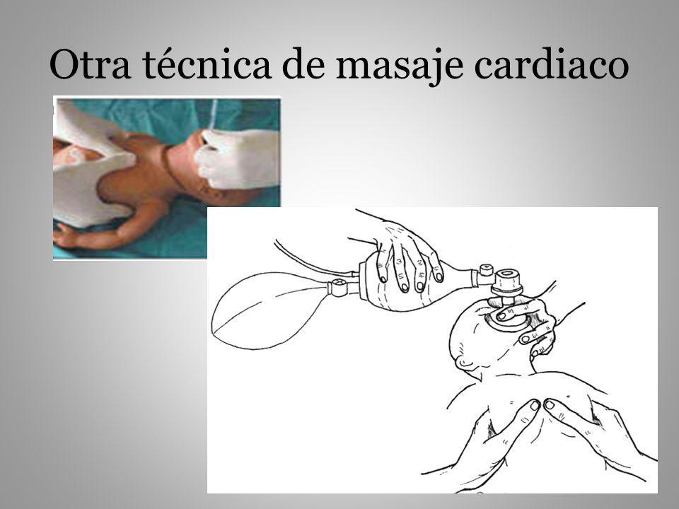 Otra técnica de masaje cardiaco