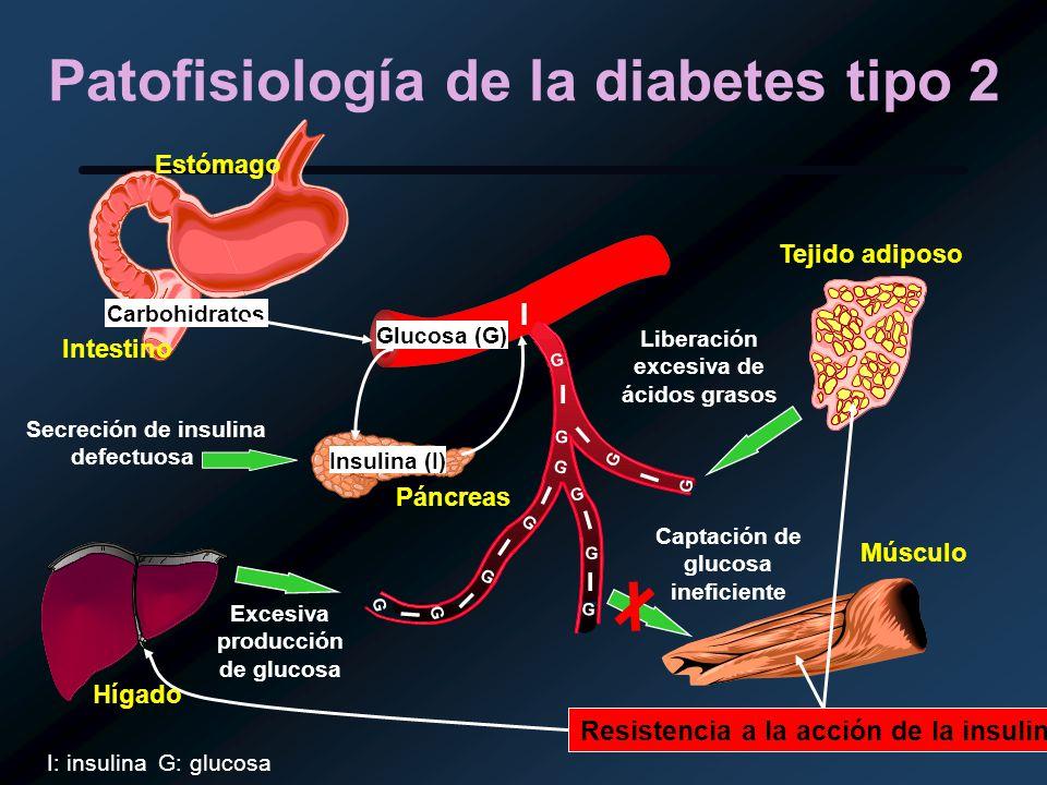 Patofisiología de la diabetes tipo 2