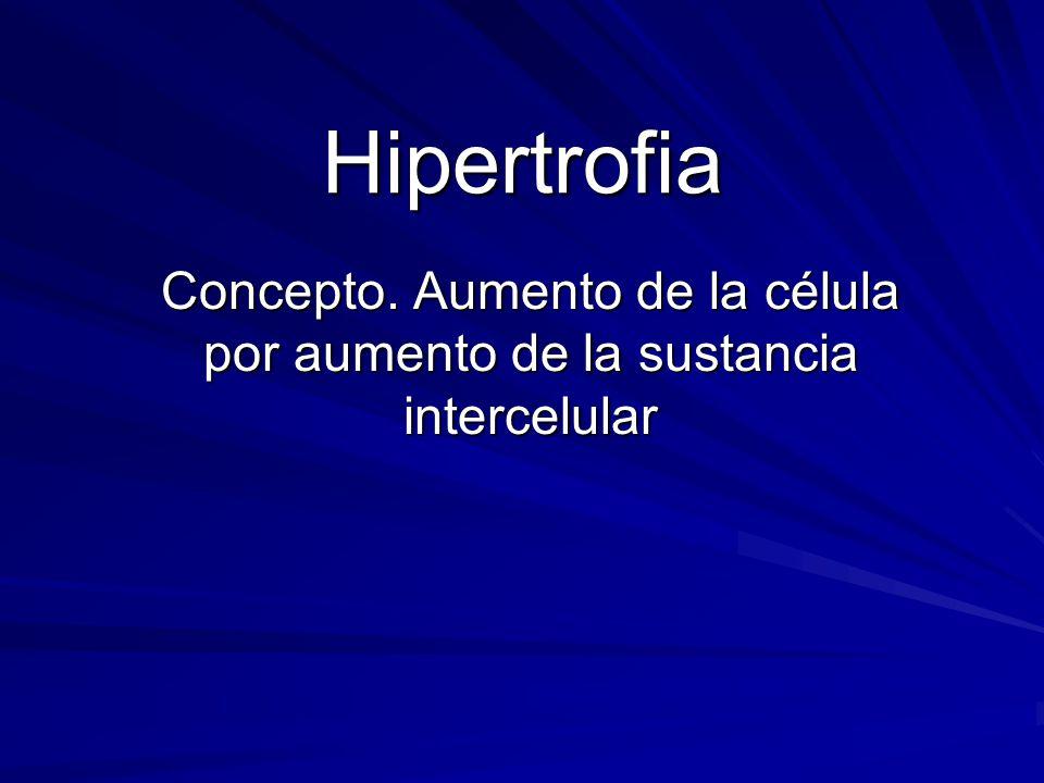 Hipertrofia Concepto. Aumento de la célula por aumento de la sustancia intercelular