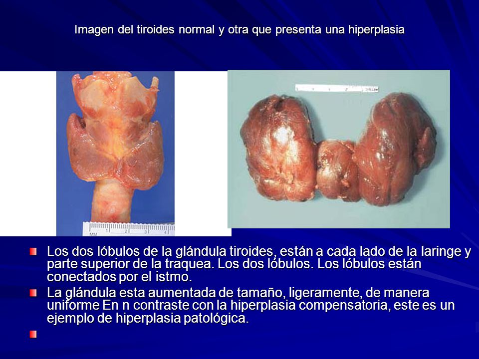 Imagen del tiroides normal y otra que presenta una hiperplasia