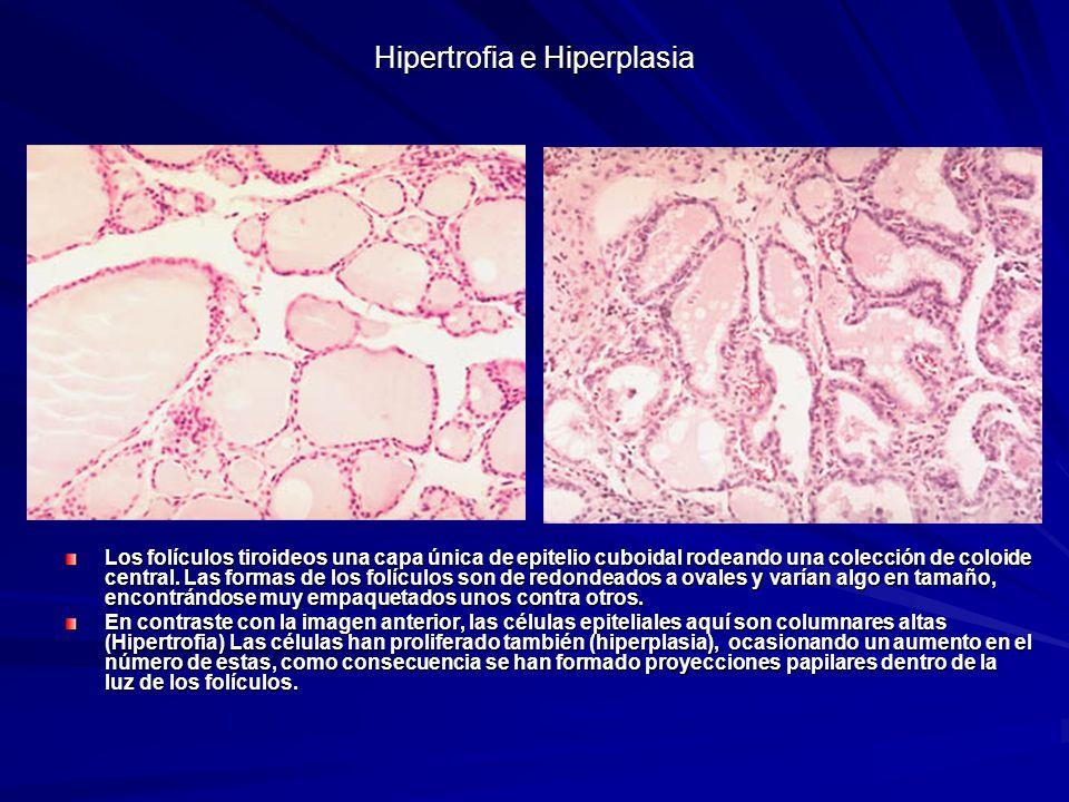 Hipertrofia e Hiperplasia