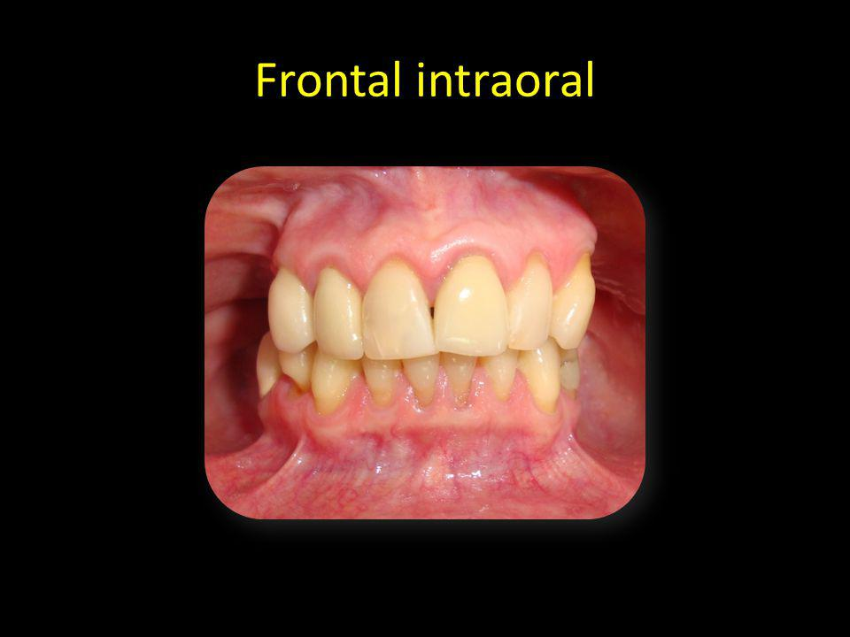Frontal intraoral