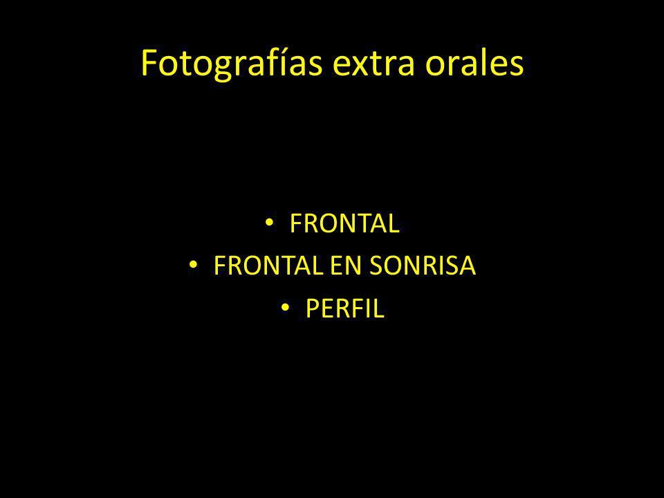 Fotografías extra orales