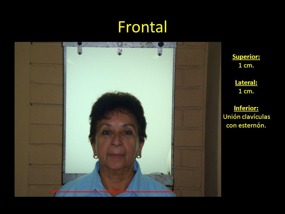 Frontal Superior: 1 cm. Lateral: Inferior: Unión clavículas