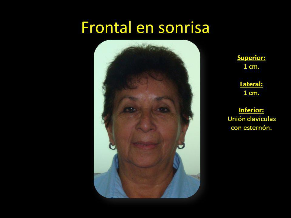 Frontal en sonrisa Superior: 1 cm. Lateral: Inferior: Unión clavículas