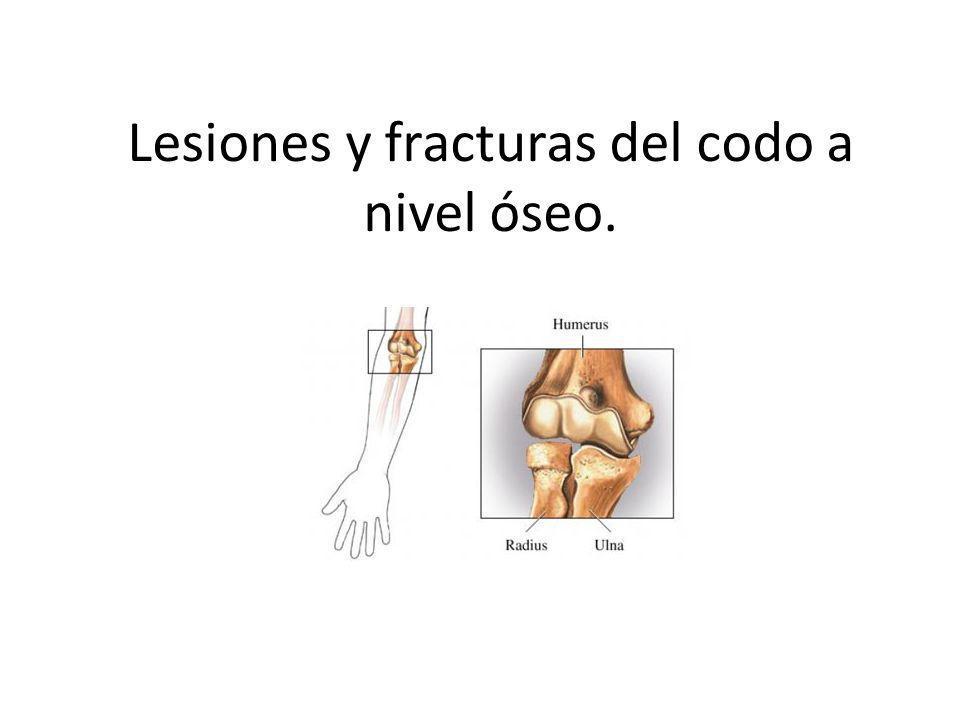 Lesiones y fracturas del codo a nivel óseo.