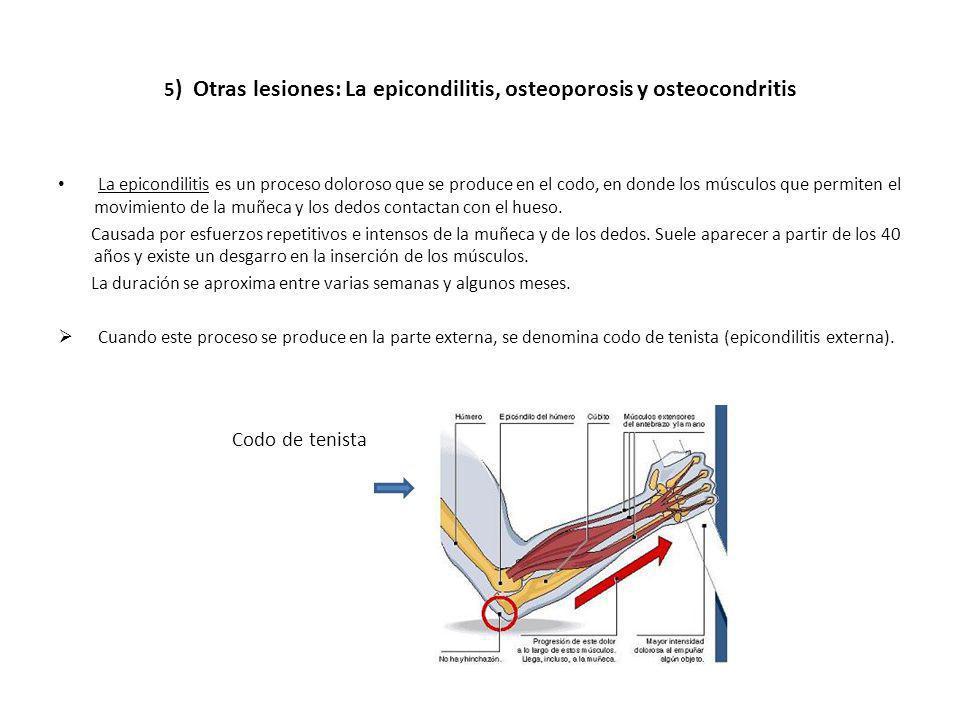 5) Otras lesiones: La epicondilitis, osteoporosis y osteocondritis