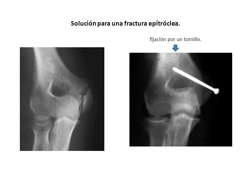Solución para una fractura epitróclea.