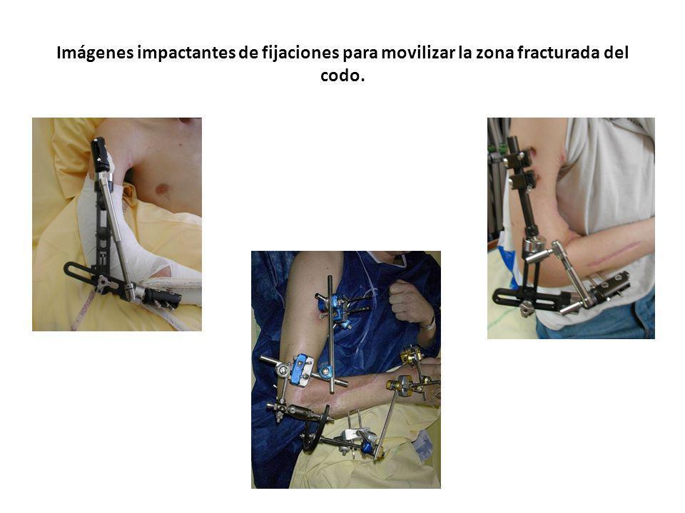 Imágenes impactantes de fijaciones para movilizar la zona fracturada del codo.