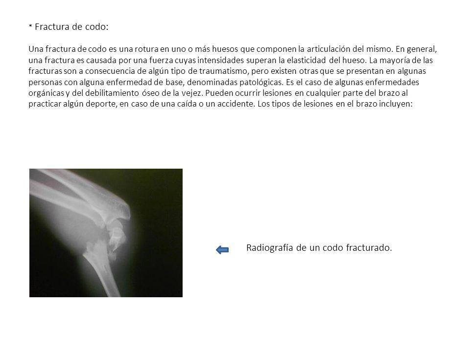 Radiografía de un codo fracturado.