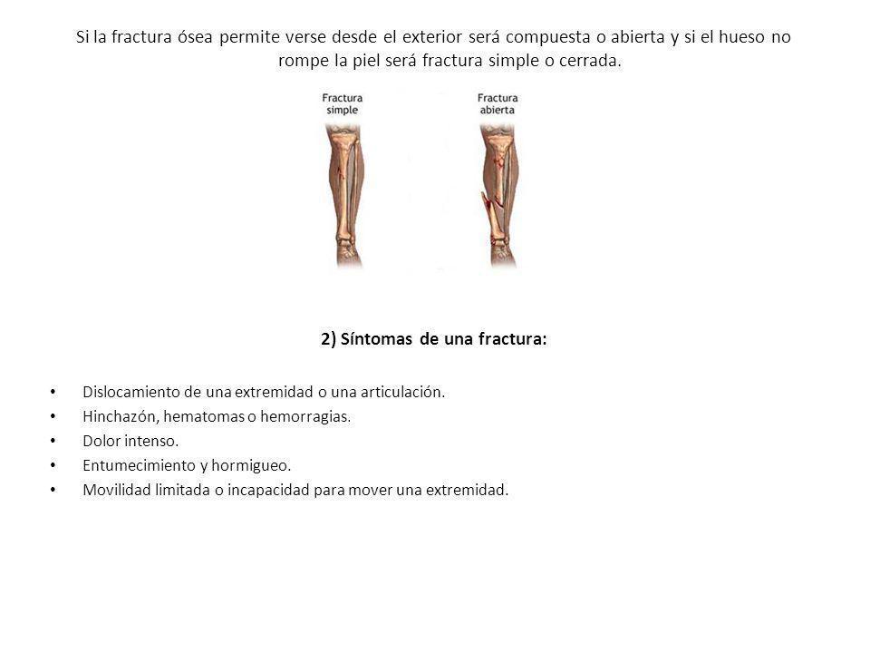 2) Síntomas de una fractura: