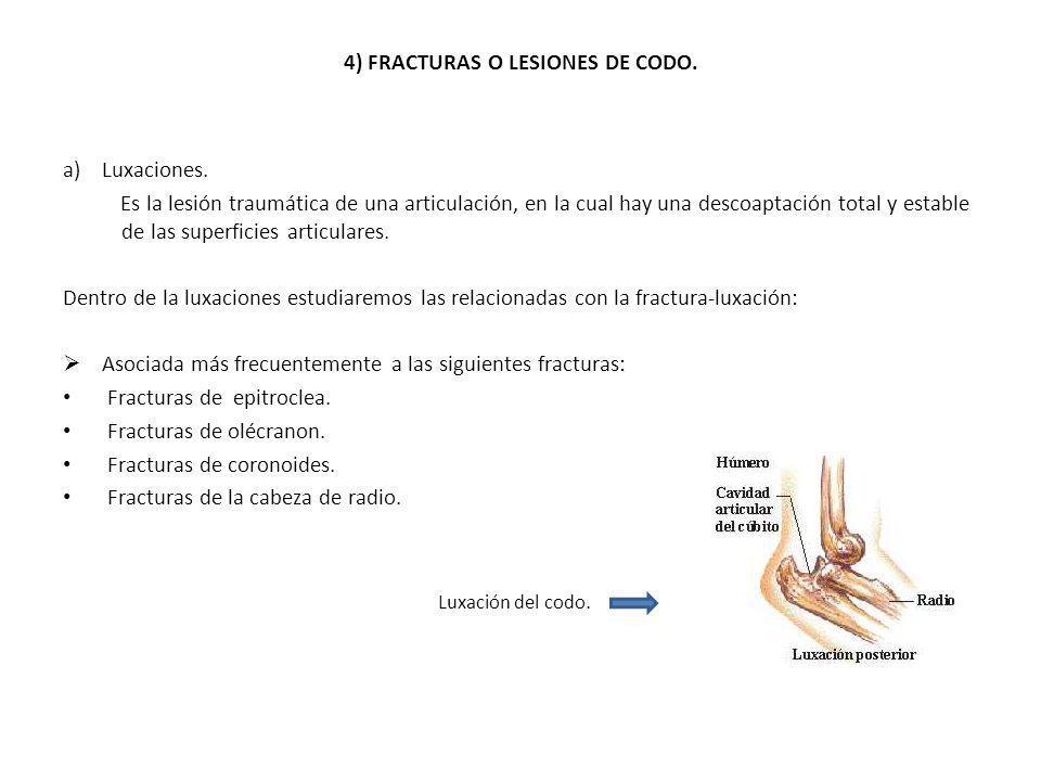 4) FRACTURAS O LESIONES DE CODO.