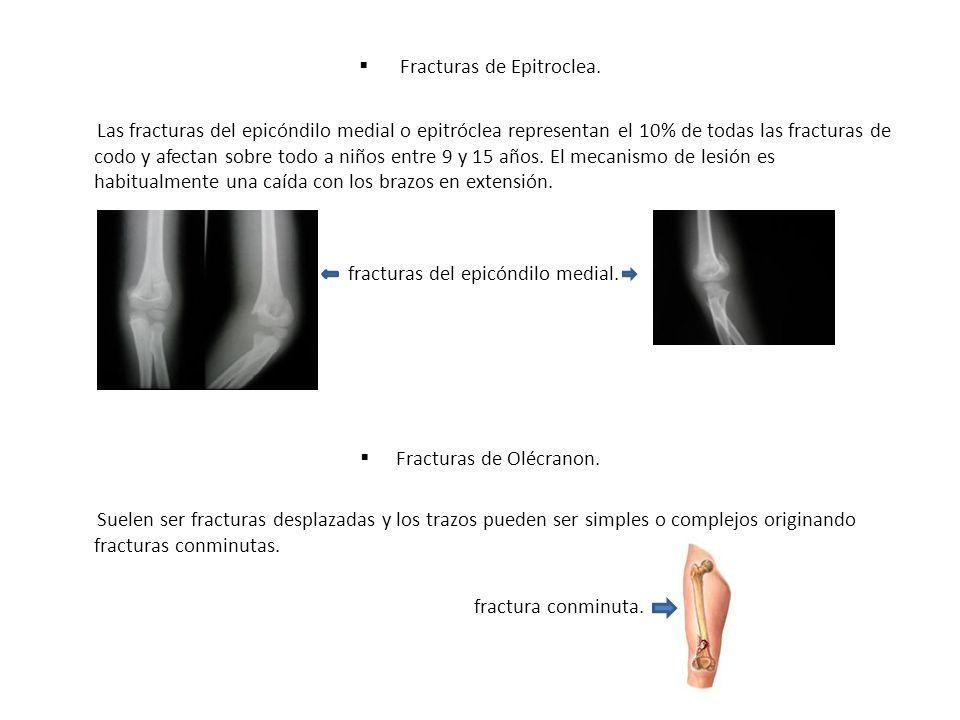 Fracturas de Epitroclea.