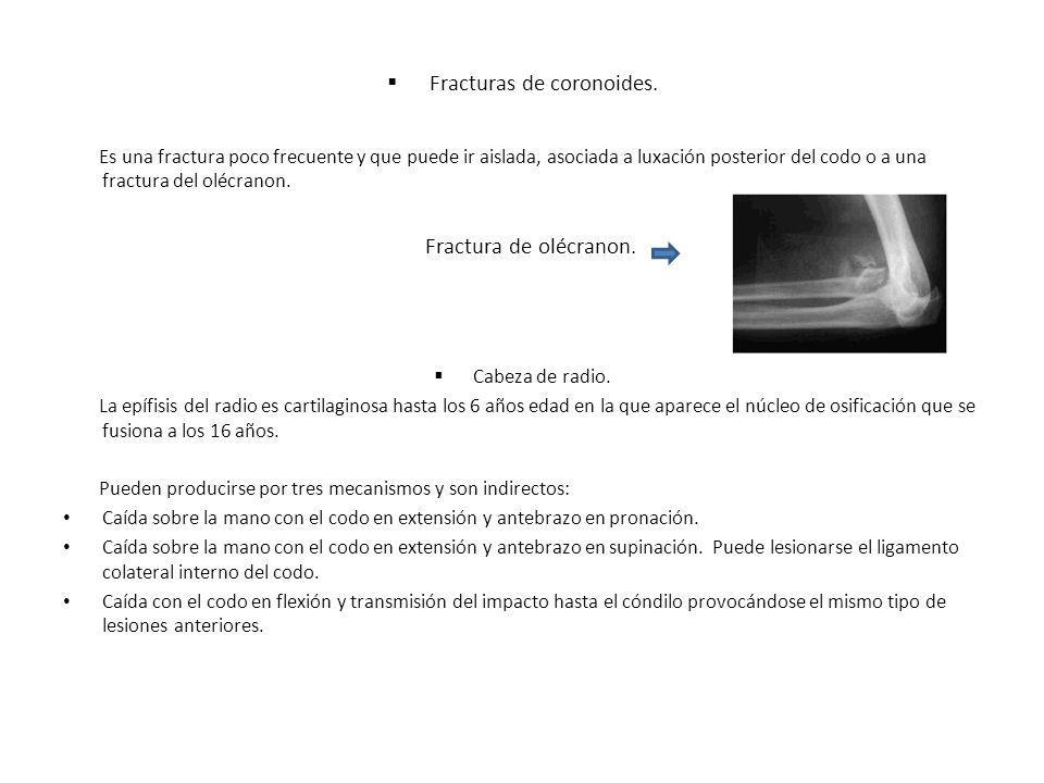 Fracturas de coronoides.