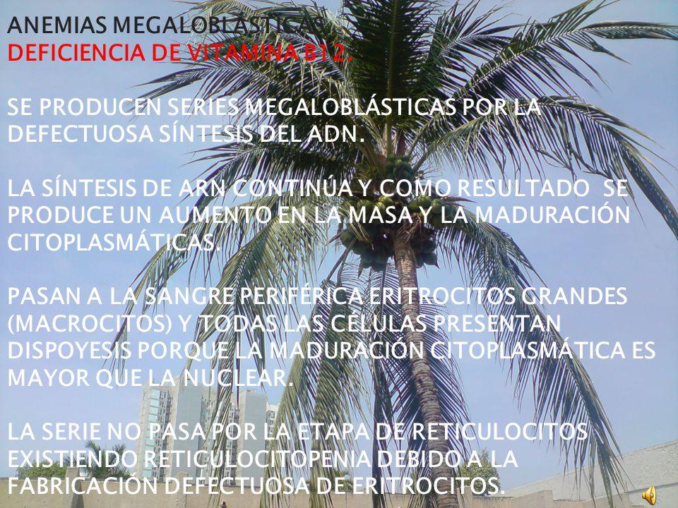 ANEMIAS MEGALOBLÁSTICAS. DEFICIENCIA DE VITAMINA B12.
