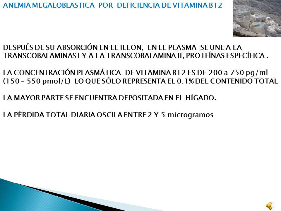 ANEMIA MEGALOBLASTICA POR DEFICIENCIA DE VITAMINA B12
