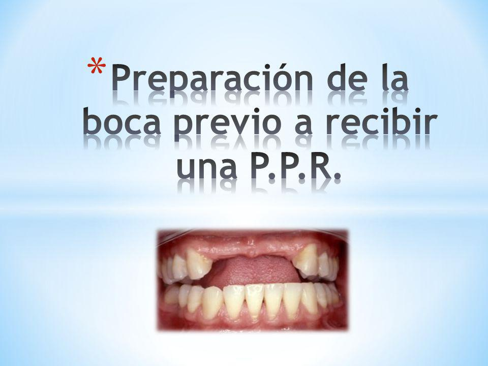Preparación de la boca previo a recibir una P.P.R.