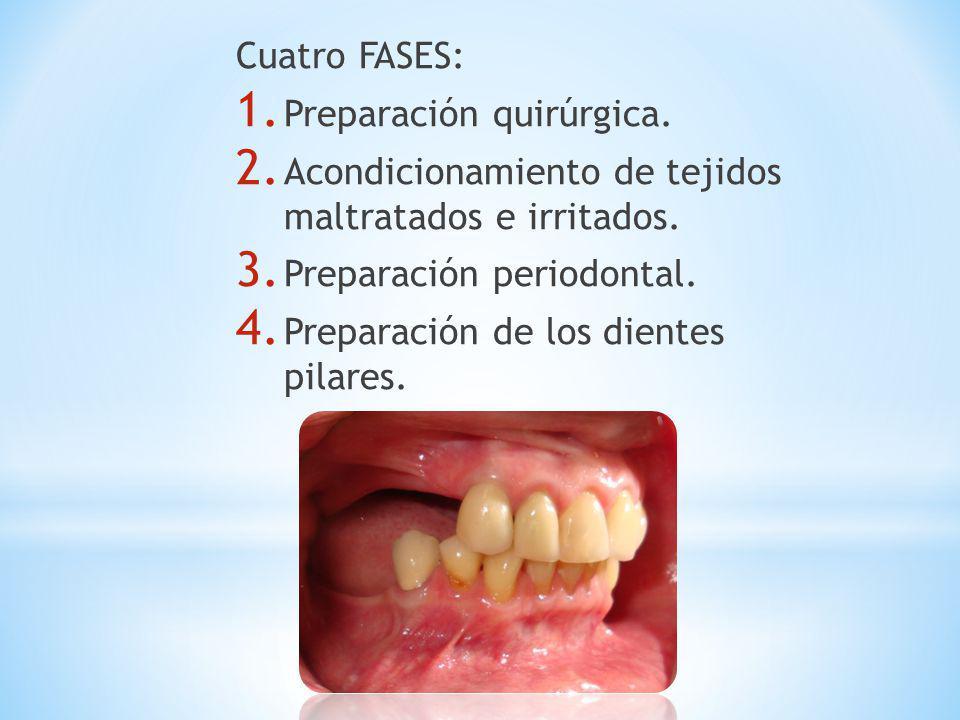 Cuatro FASES: Preparación quirúrgica. Acondicionamiento de tejidos maltratados e irritados. Preparación periodontal.