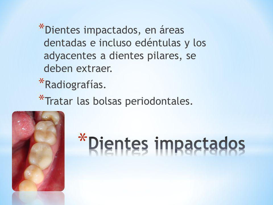 Dientes impactados, en áreas dentadas e incluso edéntulas y los adyacentes a dientes pilares, se deben extraer.
