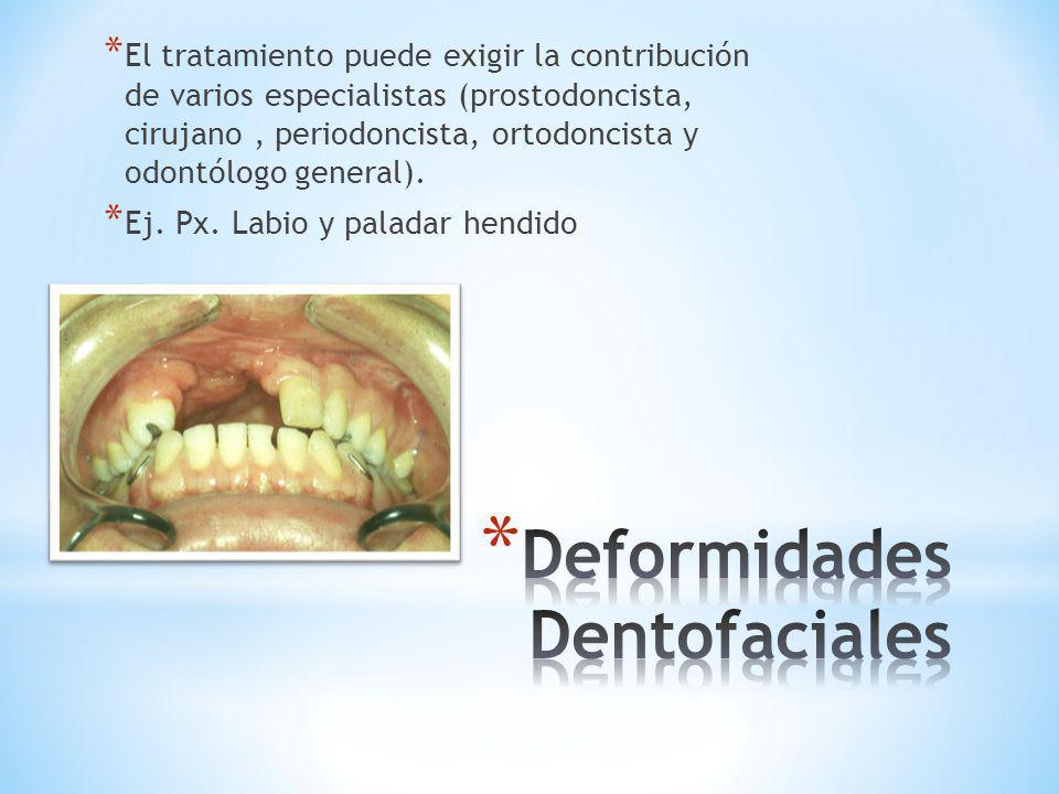Deformidades Dentofaciales