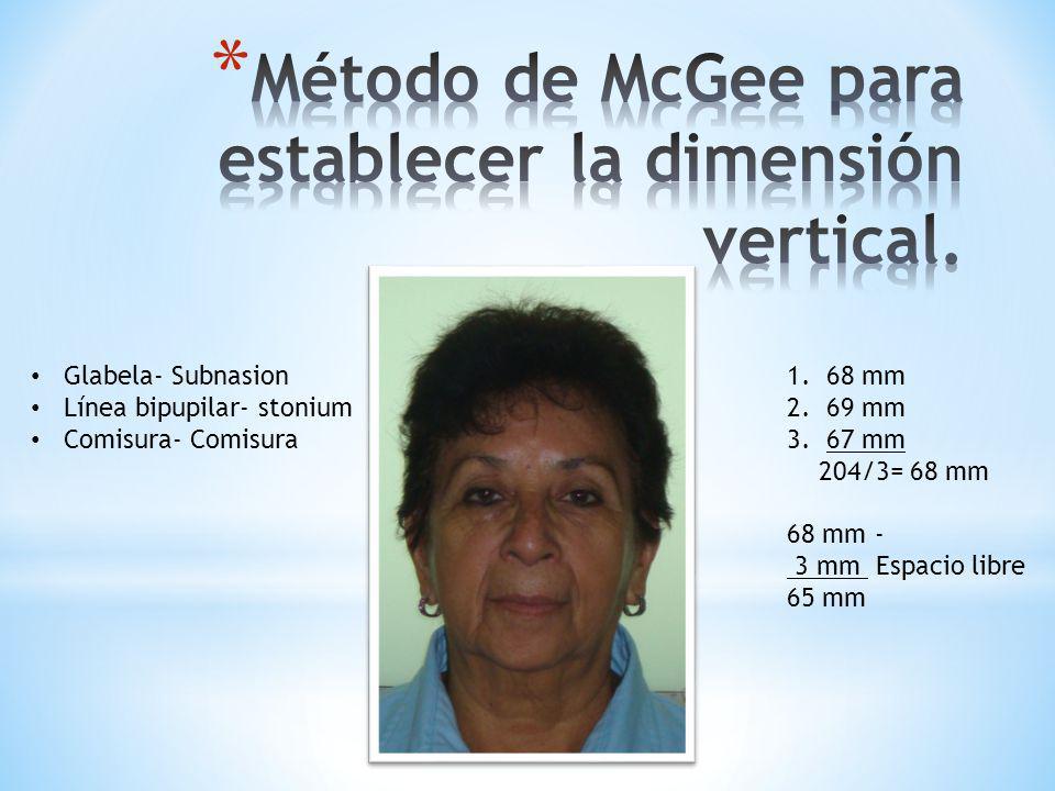 Método de McGee para establecer la dimensión vertical.