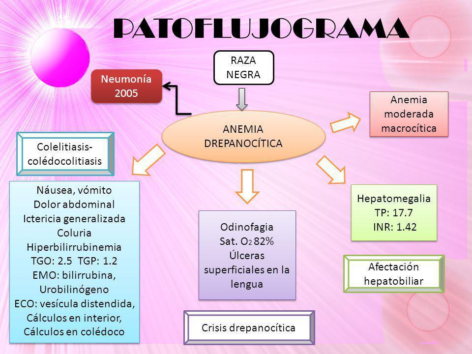 PATOFLUJOGRAMA RAZA NEGRA Neumonía 2005 Anemia moderada macrocítica