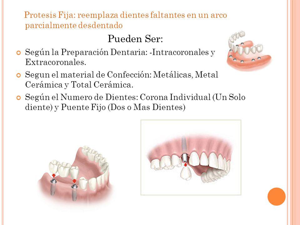 Protesis Fija: reemplaza dientes faltantes en un arco parcialmente desdentado