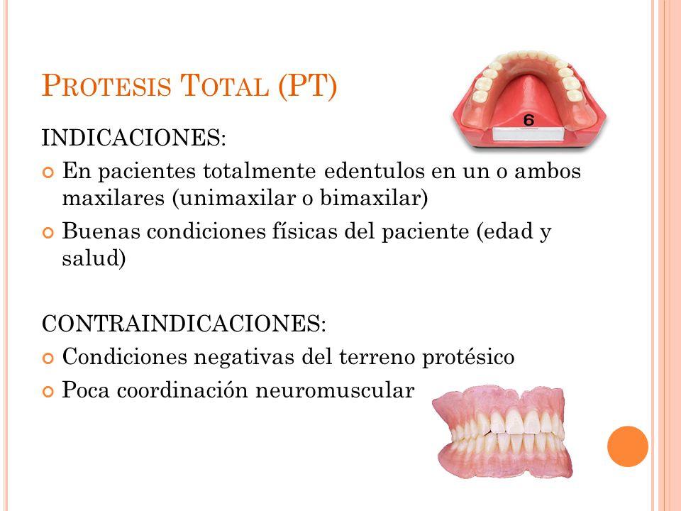 Protesis Total (PT) INDICACIONES: