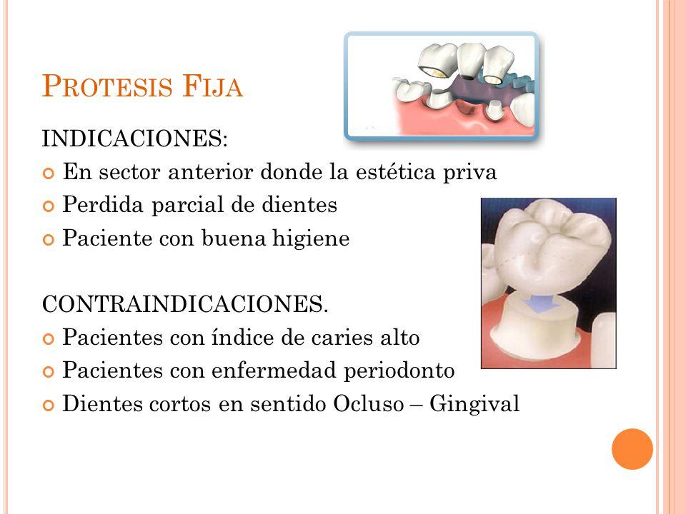 Protesis Fija INDICACIONES: En sector anterior donde la estética priva