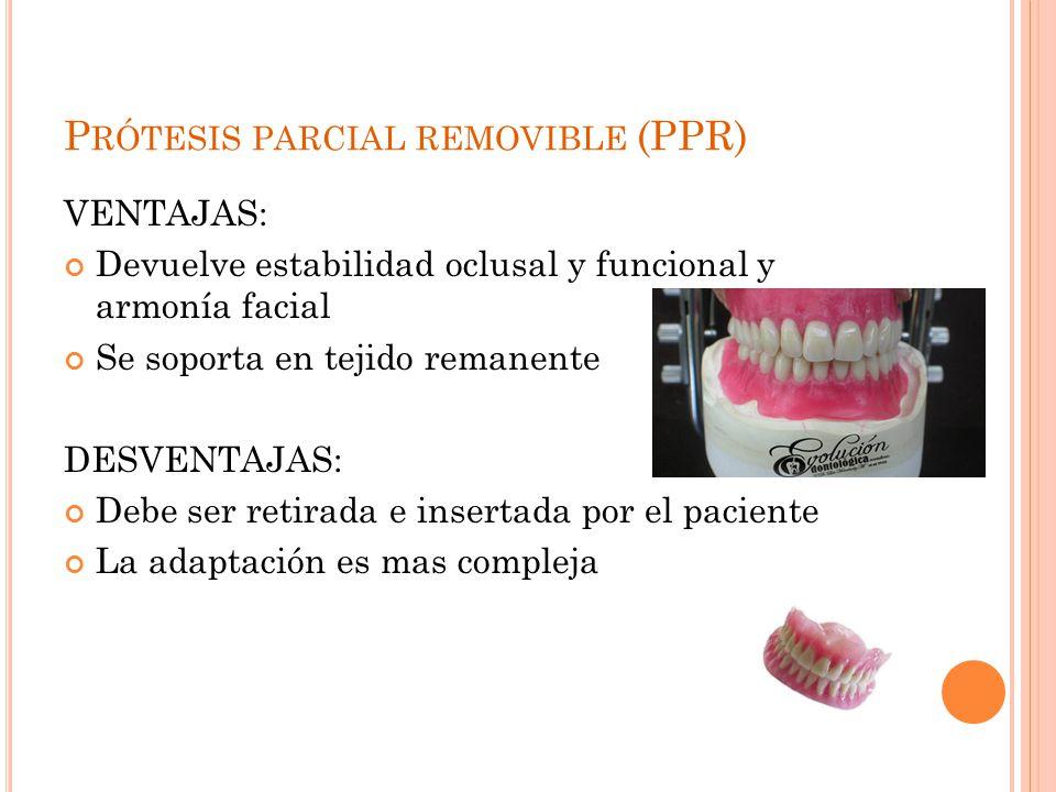 Prótesis parcial removible (PPR)