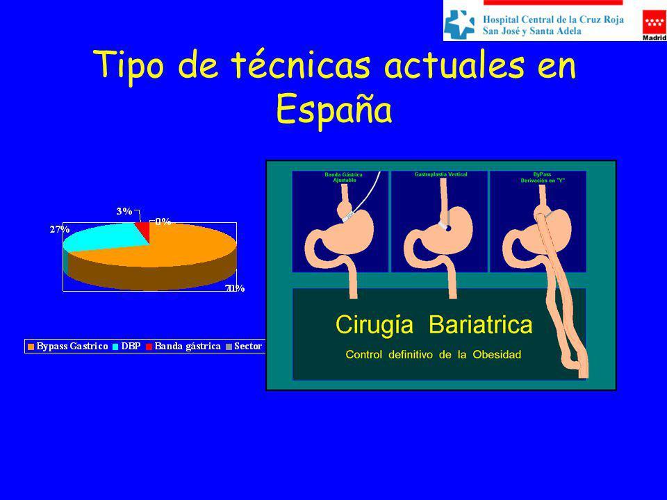Tipo de técnicas actuales en España