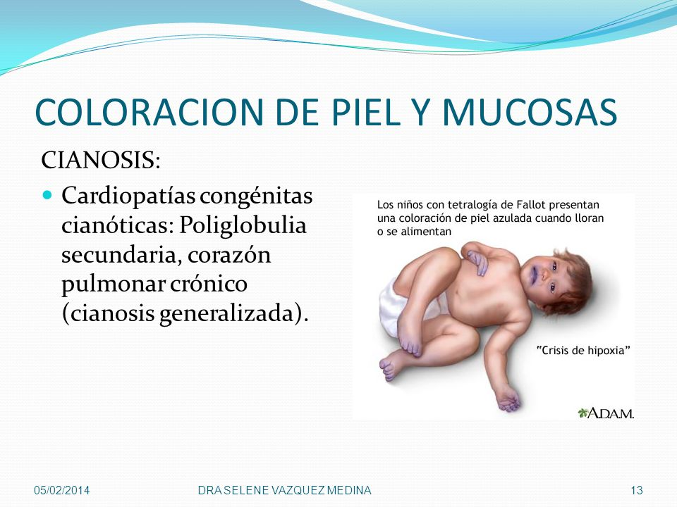 COLORACION DE PIEL Y MUCOSAS