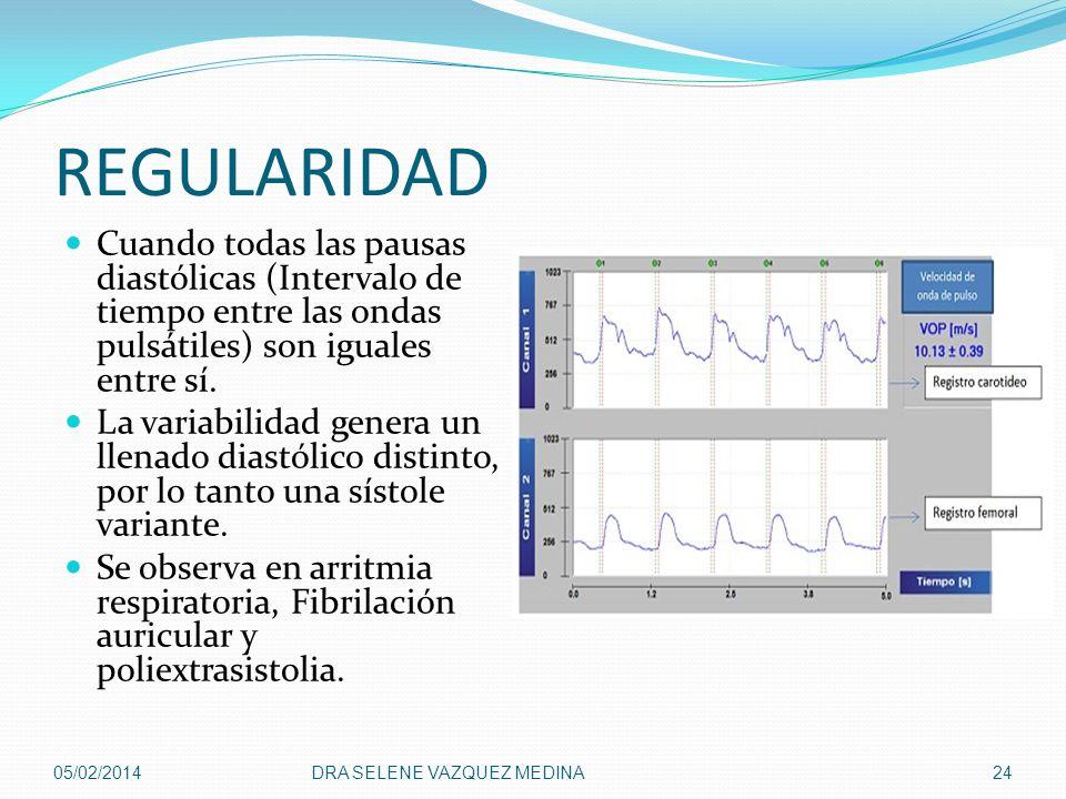 REGULARIDAD Cuando todas las pausas diastólicas (Intervalo de tiempo entre las ondas pulsátiles) son iguales entre sí.