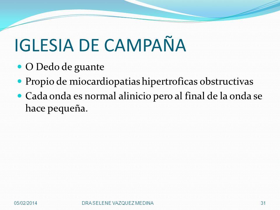IGLESIA DE CAMPAÑA O Dedo de guante