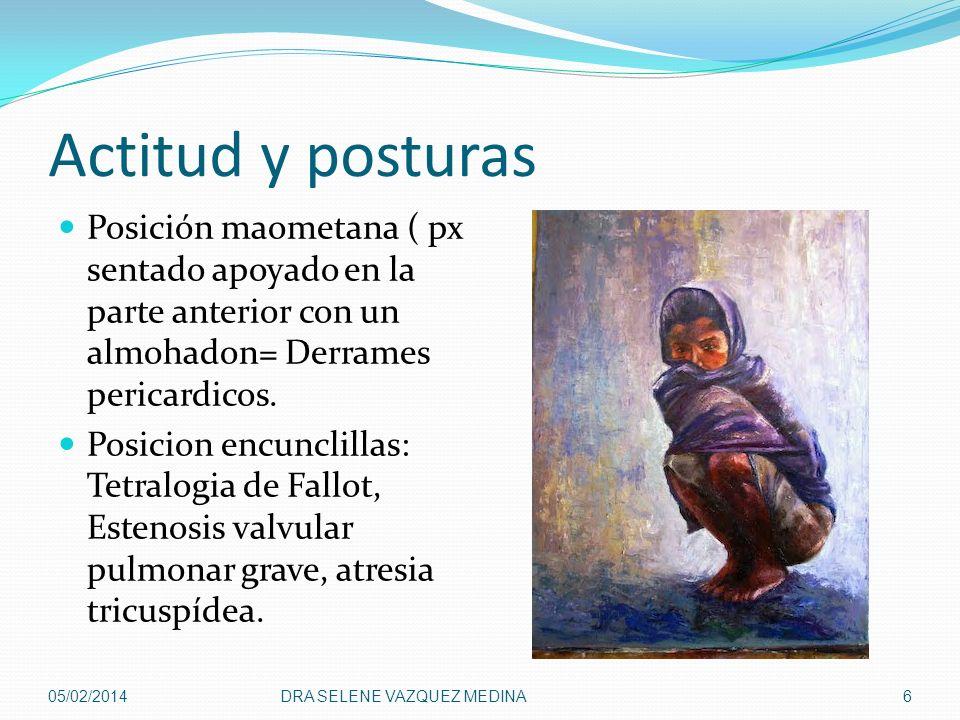 Actitud y posturas Posición maometana ( px sentado apoyado en la parte anterior con un almohadon= Derrames pericardicos.