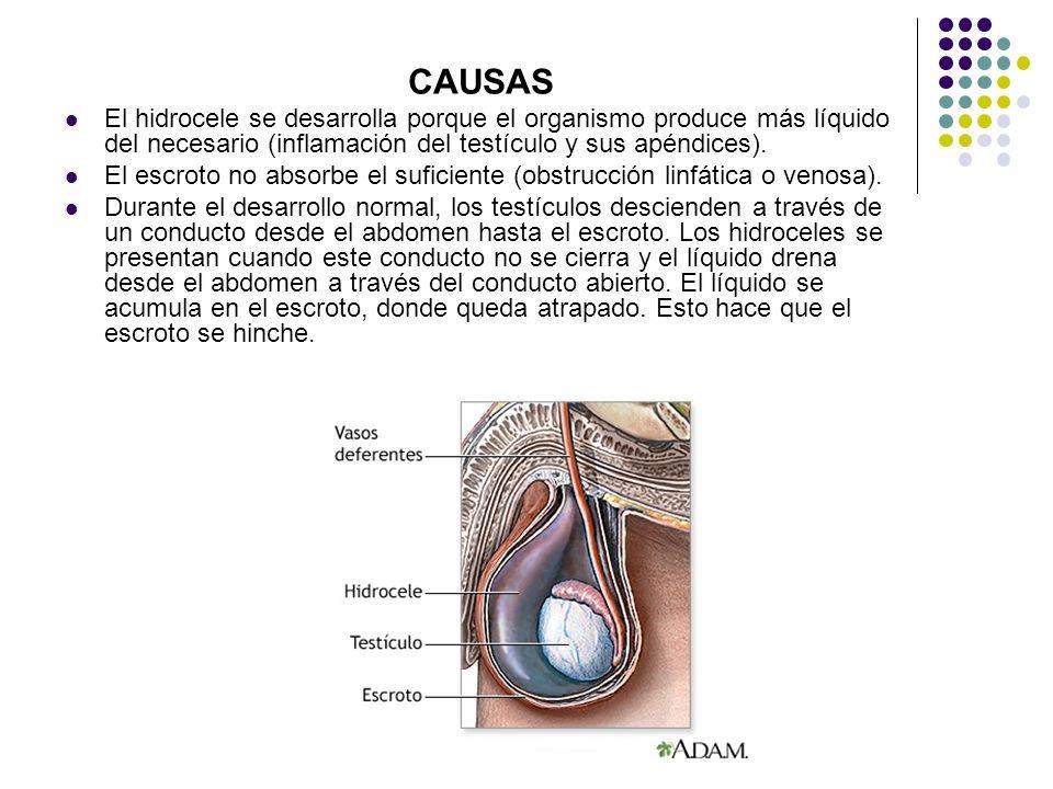 CAUSAS El hidrocele se desarrolla porque el organismo produce más líquido del necesario (inflamación del testículo y sus apéndices).