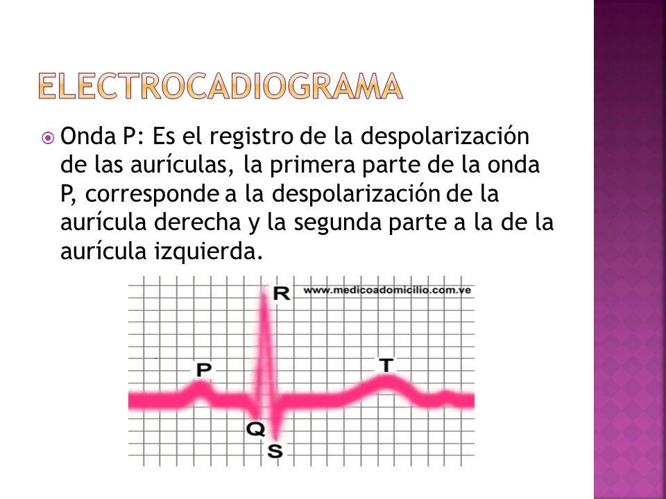 ELECTROCADIOGRAMA
