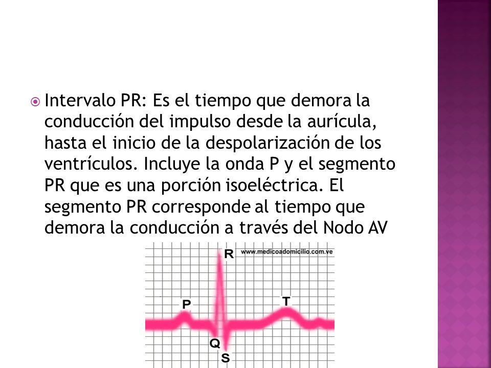 Intervalo PR: Es el tiempo que demora la conducción del impulso desde la aurícula, hasta el inicio de la despolarización de los ventrículos.