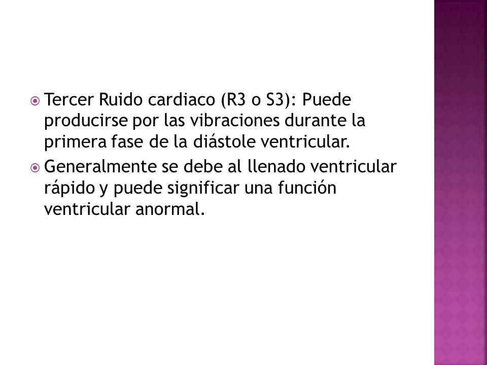 Tercer Ruido cardiaco (R3 o S3): Puede producirse por las vibraciones durante la primera fase de la diástole ventricular.