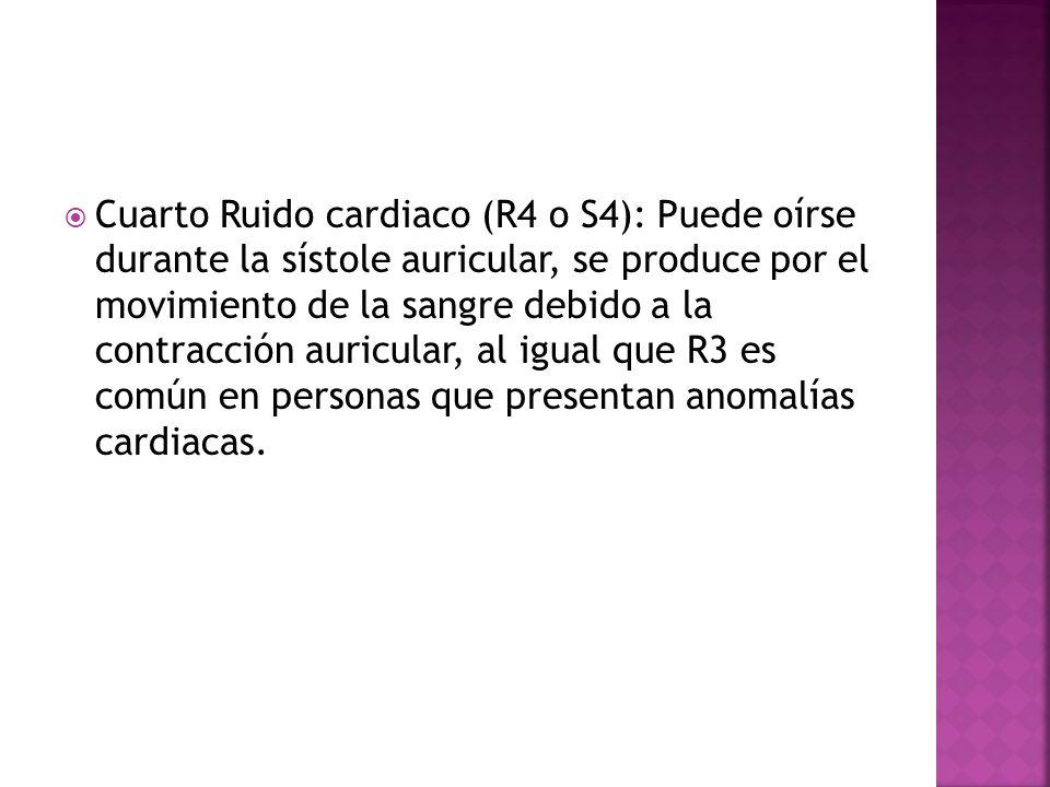 Cuarto Ruido cardiaco (R4 o S4): Puede oírse durante la sístole auricular, se produce por el movimiento de la sangre debido a la contracción auricular, al igual que R3 es común en personas que presentan anomalías cardiacas.